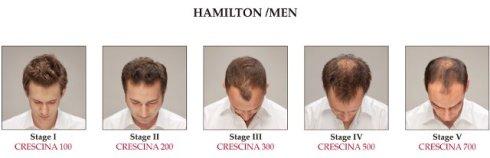 hamilton man